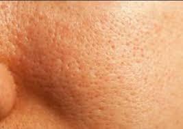 what is the best foundation for large pores on oily skin that is acne e