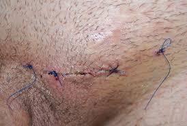 varicocele surgery preparation