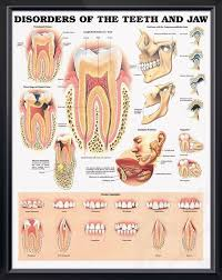 Jaw Chart Disorders Of The Teeth And Jaw Chart 20x26 Dental