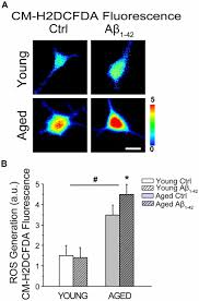 Frontiers Amyloid β Oligomers Increase Er Mitochondria Ca2 Cross
