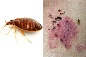 Insect Bites Guide Pictures And Treatment Advice For Bites