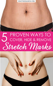 5 proven ways to cove hide and remove stretch marks while i haven t found the founn of youth yet i have discovered a few stretch mark removal methods