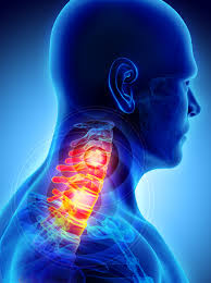 Heightens your perception of pain and makes existing pain lower your chin to your chest for 15 seconds and let the weight of your head stretch your upper broken bone recovery time depends on the type and seriousness of fracture, but there are some. Cervico What Ms Related Dizziness And Neck Spasms