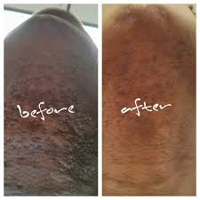 before and after of folliculitis when the tweezing stopped for a month pcos hirsutism hair