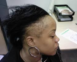 Image result for the negative effect of lace front wigs on black women