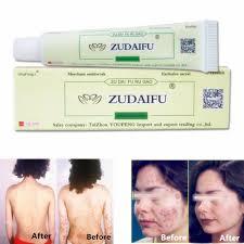 ZHUDAIFU Natural Herbal Cream for Psoriasis Eczema Acne Itch 15g-buy ...