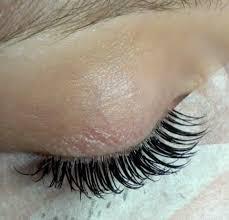 eyelash curler accident. i eyelash curler accident