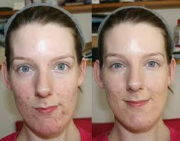 makeup for acne bareminerals bareskin foundation before and after middot e skin