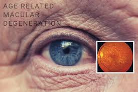 a chronic eye disease that occurs as you age is called macular degeneration which is often called age macular degeneration or armd