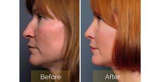 Broken noses are almost always covered by your health insurance plan although many college insurances do not cover any nasal surgery. How Much Does A Nose Job Cost Stein Plastic Surgery