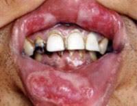 Сифилис полости рта причины симптомы диагностика и лечение Сифилис полости рта