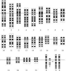 summary of down syndrome symtoms and treatments writework down syndrome karyotype from en same file