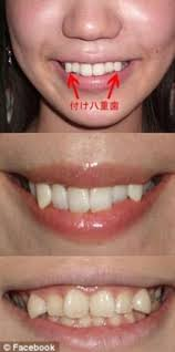 teeth shaving cost. \u0027cute\u0027: young women pictured after they have had adhesive mini-fangs attached. \u0027 teeth shaving cost