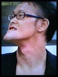 稲田 顎 病気