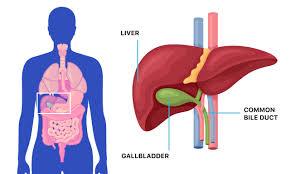 gallbladder problems gallstone