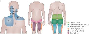 Pain Referral Patterns Cool Figure 48 Cervical And Lumbar Facet Joint Pain Referral Patterns