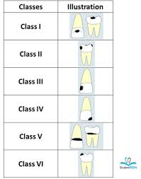 Must Know Classifications Of Dental Caries For The National