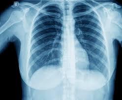 مضاعفات الالتهاب الرئوي | المرسال
