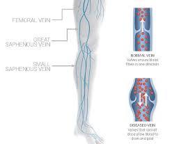 Leg Vein Chart Venous Reflux Disease Virginia Cardiovascular Specialists