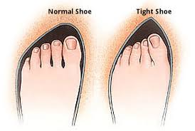 Image result for BUNIONS in shoes
