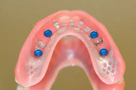 Image result for 4 implant maxillary locator overdentures
