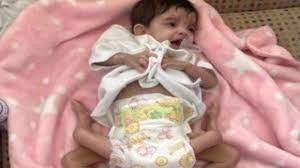 الربيعة: وصلنا إلى المرحلة الثالثة في فصل التوأم اليمني
