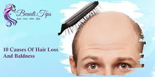 10 causes of hair loss and baldness