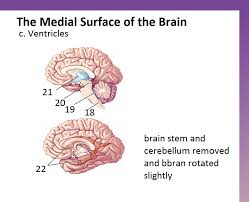 Medial Surface of the Brain Quiz - By ona241