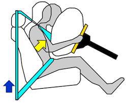 influence of advanced airbags on injury risk during frontal crashes
