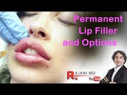permanent lip filler and options dr