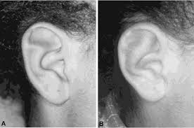 Figure 3 From Correction Of Stahls Ear Semantic Scholar
