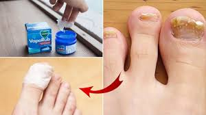 5 simple and effective home remes to treat toenail fungus at home naturally by step to health