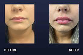 lip filler before after pictures