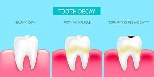 what are the top causes of tooth decay according to this article based on research published in the bmc public health journal the only reason for tooth