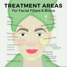 Botox Diagram Catalogue Of Schemas