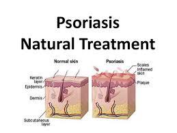 Psoriasis Natural Treatment Natural Psoriasis Treatment