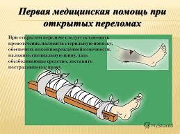 Реферат на тему оказание первой помощи при Интересное в Москве Реферат на тему оказание первой помощи при
