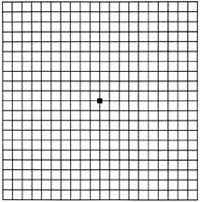 Types Of Amsler Grid Chart Amsler Grid Wikipedia