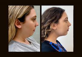 what is chin lipo recovery really like