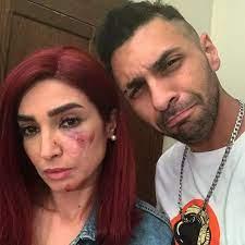 إصابة الفنانة روجينا بـ7 غرز فى وجهها خلال تصوير مسلسل بنت السلطان – جريدة  عالم النجوم