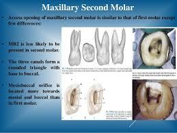 Maxillary Second Molar Access Opening Of Molar Teeth