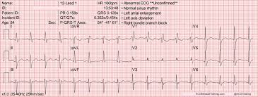 Telemetry Heart Rate Chart Large Block Method To Calculate Heart Rate Ecg Medical