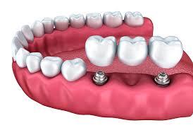 Dental Implants and Bridges - Jackson, MS