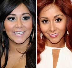 487 best before and after images on before after celebrity plastic surgery and plastic surgery