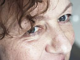 Sore Eyelid: Causes, Treatments, and More