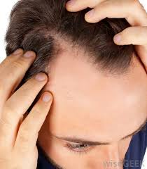 Image result for Avocado Improves scalp health
