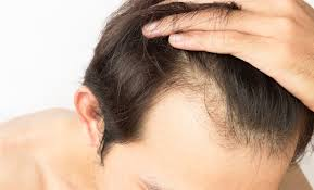hair transplant technique