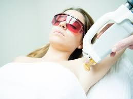 underarm laser hair removal treatment at clinic