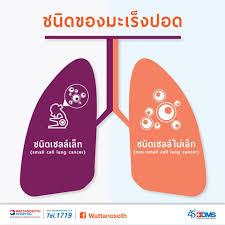 ชนิดของโรคมะเร็งปอด... - Wattanosoth Hospital