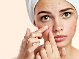 Image result for acne images free
